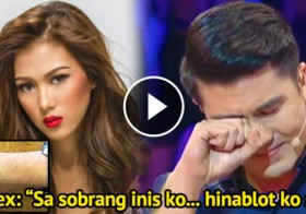 Luis Manzano Was Scratched By Alex Gonzaga In The Face… And All Hell Broke Loose!